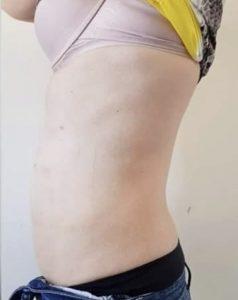 criofrecuencia resultados
