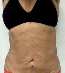 antes criofrecuencia abdominal